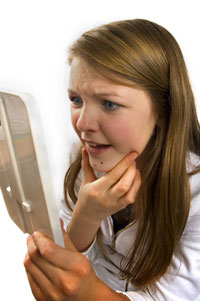 teen girl with acne 150x150 Acne linked to increased suicide in teens