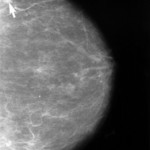 Mammogram showing breast cancer 150x150 Battle of the Breasts: who's the boob? 16 crucial facts for you to know